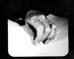 Other Evidence 13.  Wounds on Marilyn's Left Hand, Autopsy Photo