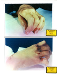 Photo 01: Marilyn Sheppard's Hands at Autopsy by Cuyahoga County Coroner's Office