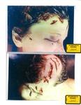 Plaintiff's Exhibit 2008 & 2012: Right side of Marilyn's face at autopsy; Marilyn's head at autopsy